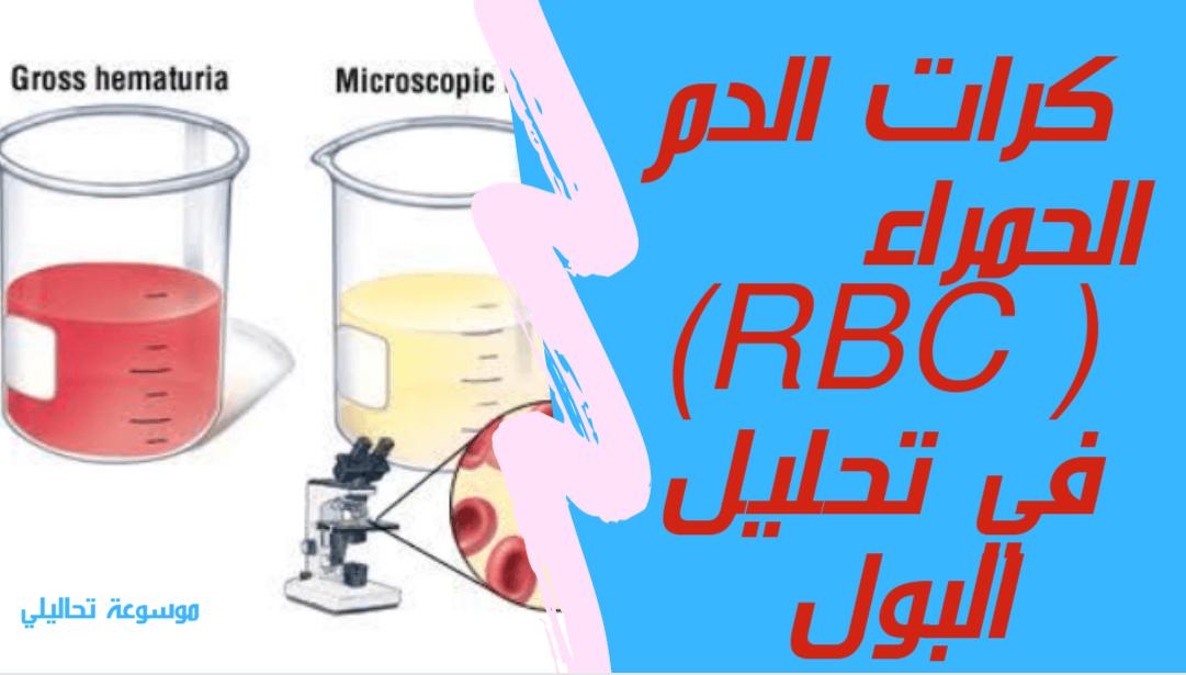 ما معنى Rbc في تحليل البول تحاليلي